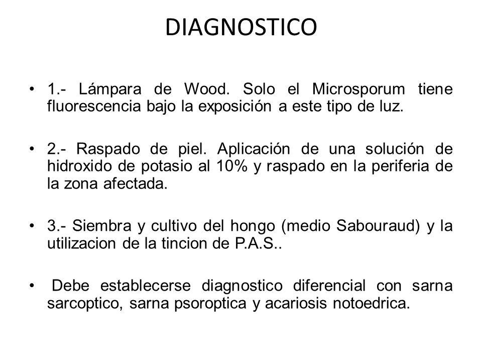 DIAGNOSTICO 1.- Lámpara de Wood. Solo el Microsporum tiene fluorescencia bajo la exposición a este tipo de luz.