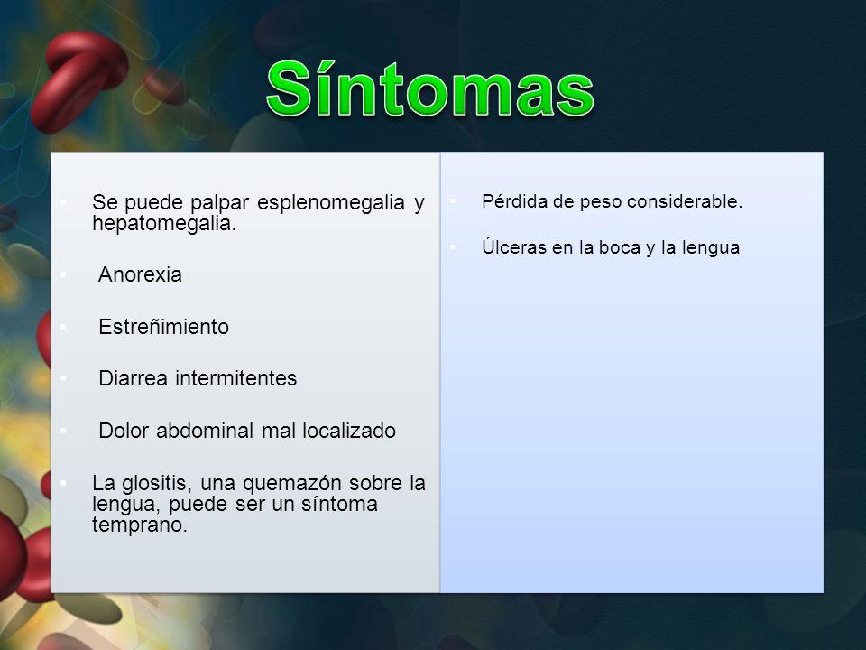 Síntomas Se puede palpar esplenomegalia y hepatomegalia. Anorexia