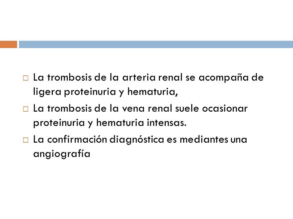 La trombosis de la arteria renal se acompaña de ligera proteinuria y hematuria,