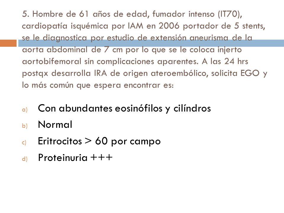 Con abundantes eosinófilos y cilíndros Normal