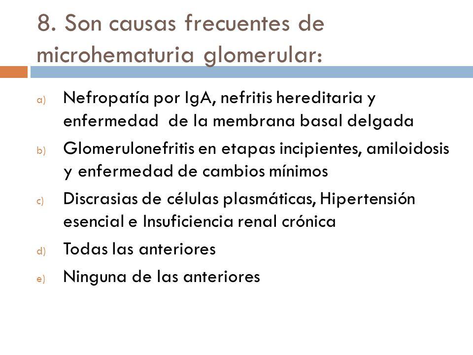 8. Son causas frecuentes de microhematuria glomerular: