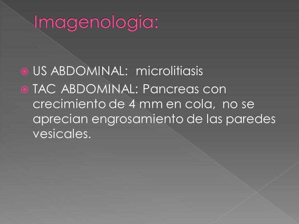 Imagenologia: US ABDOMINAL: microlitiasis