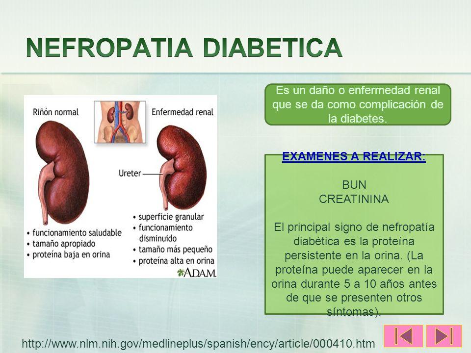 NEFROPATIA DIABETICA Es un daño o enfermedad renal que se da como complicación de la diabetes. EXAMENES A REALIZAR: