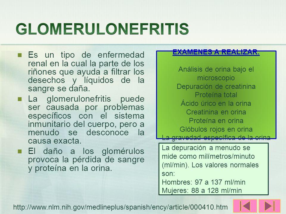 GLOMERULONEFRITIS Es un tipo de enfermedad renal en la cual la parte de los riñones que ayuda a filtrar los desechos y líquidos de la sangre se daña.