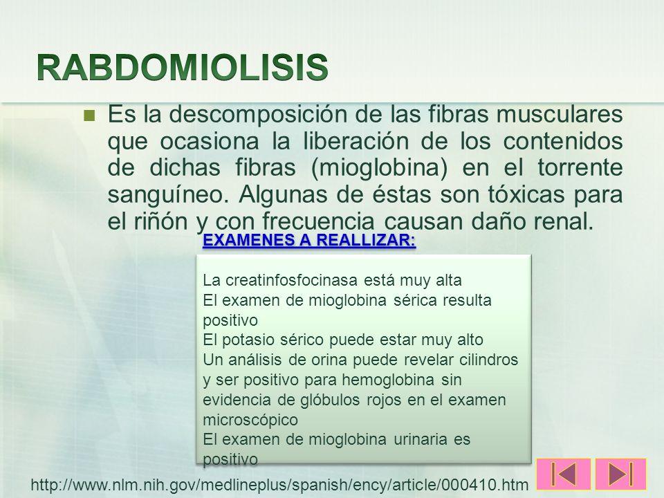 RABDOMIOLISIS