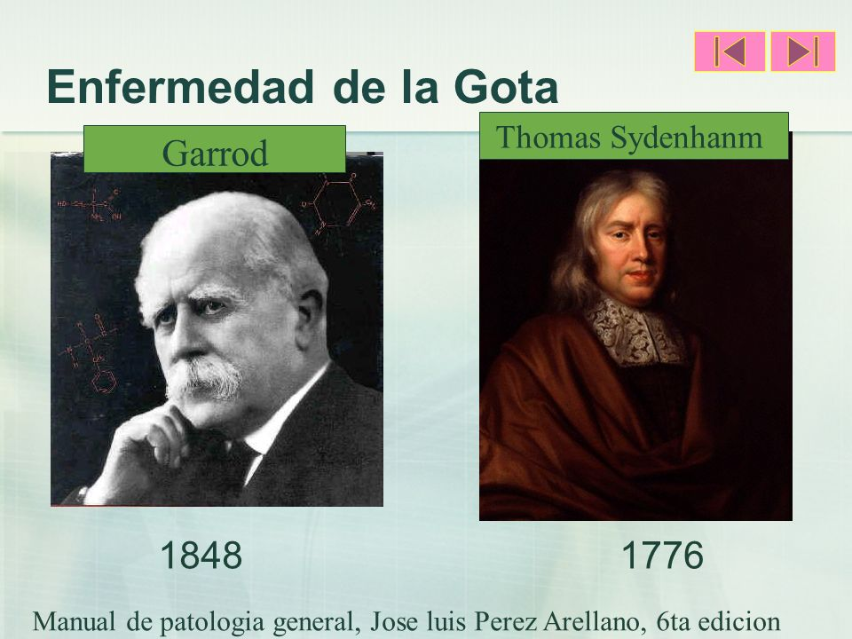 Enfermedad de la Gota Garrod 1848 1776 Thomas Sydenhanm