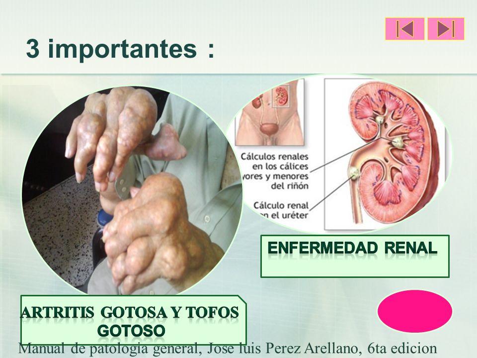 Artritis Gotosa y Tofos