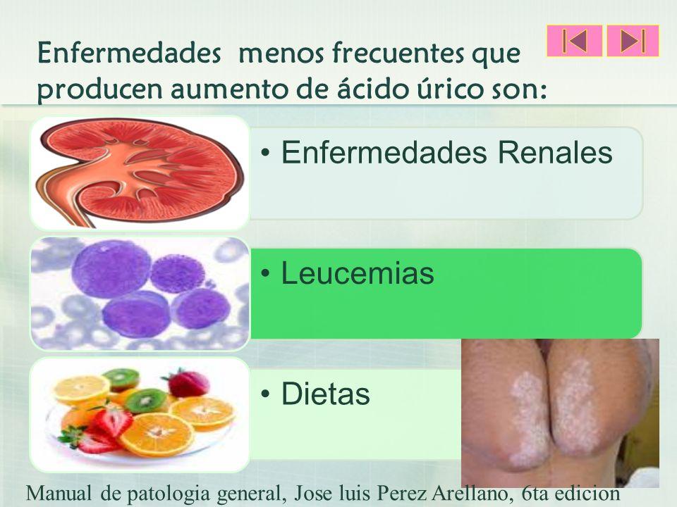 Enfermedades menos frecuentes que producen aumento de ácido úrico son:
