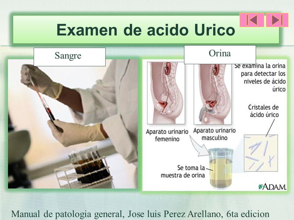 Examen de acido Urico Orina Sangre