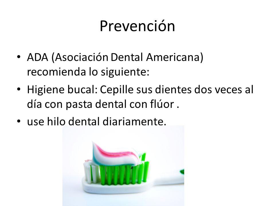 Prevención ADA (Asociación Dental Americana) recomienda lo siguiente: