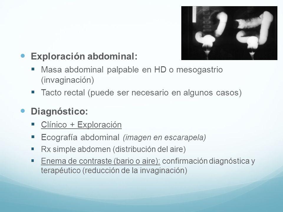 Exploración abdominal: