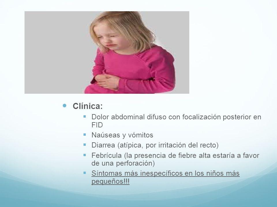 Clínica: Dolor abdominal difuso con focalización posterior en FID