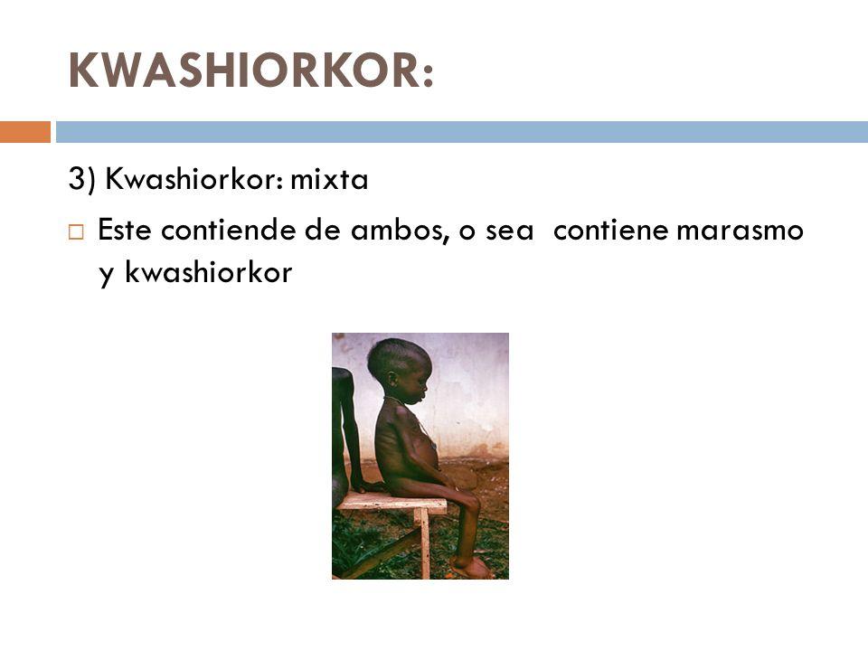 KWASHIORKOR: 3) Kwashiorkor: mixta