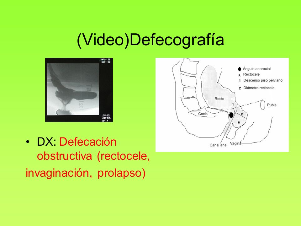 (Video)Defecografía DX: Defecación obstructiva (rectocele,
