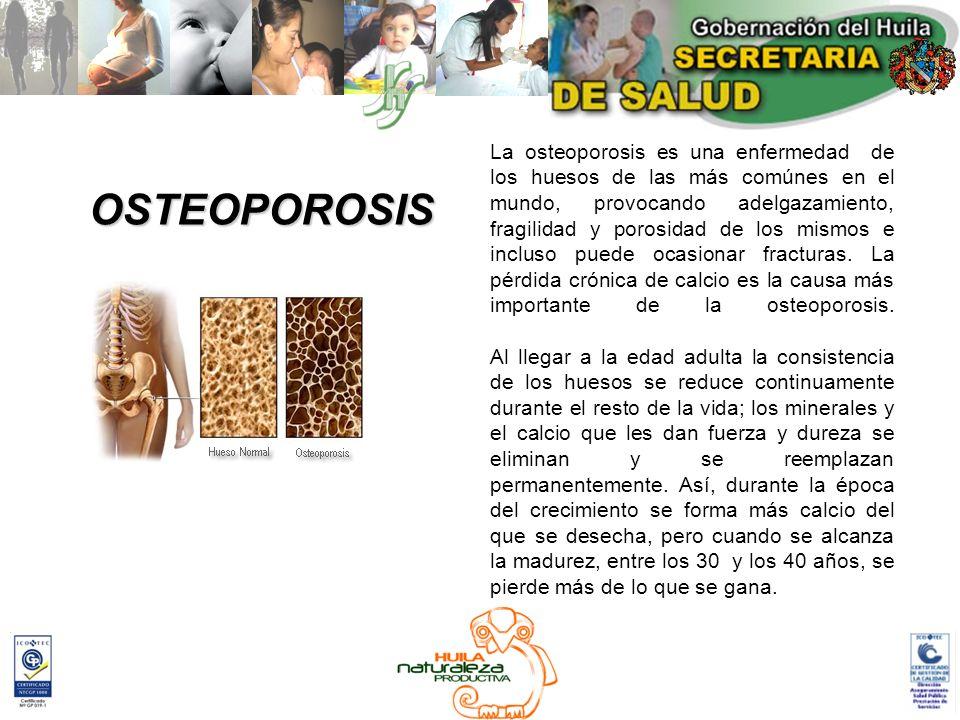 La osteoporosis es una enfermedad de los huesos de las más comúnes en el mundo, provocando adelgazamiento, fragilidad y porosidad de los mismos e incluso puede ocasionar fracturas. La pérdida crónica de calcio es la causa más importante de la osteoporosis.