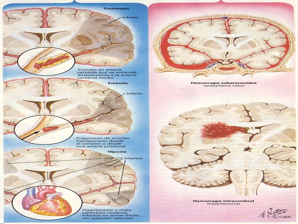 En las diapositivas anteriores se presentó la clasificación de los trastornos isquémicos, los hemorrágicos se subdividen en dos grandes grupos: hemorragia intracerebral o intraparenquimatosa y hemorragia subaracnoidea.