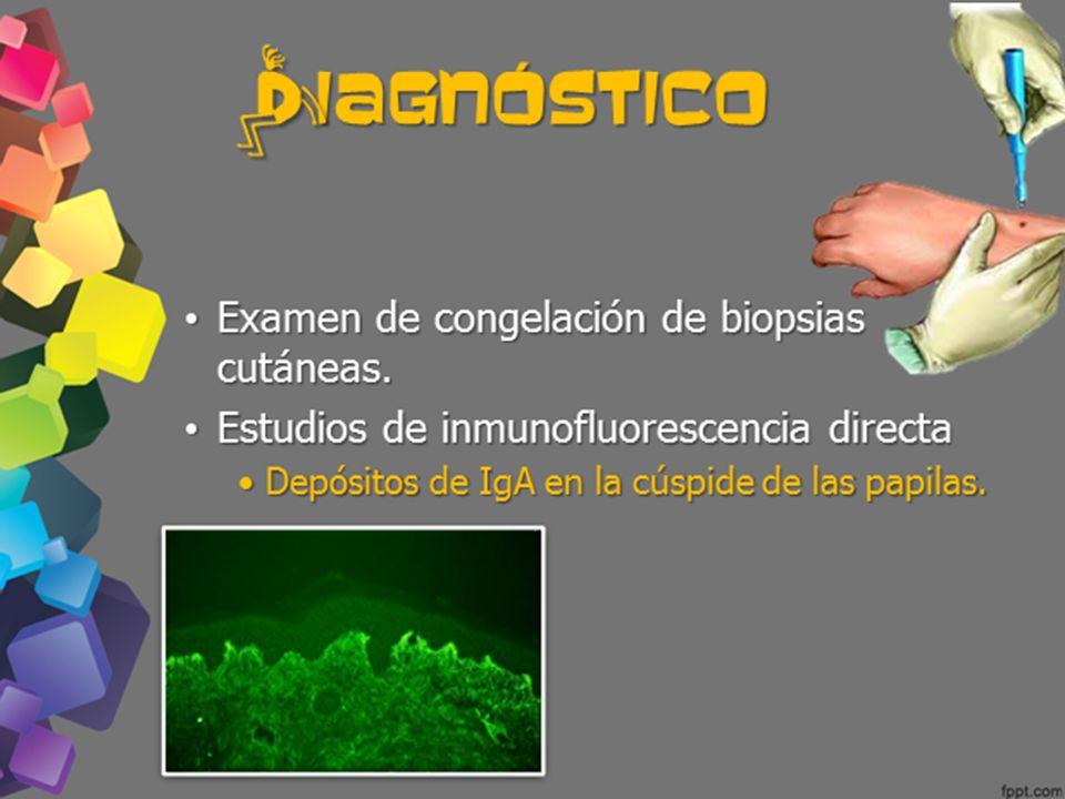 d iagnóstico Examen de congelación de biopsias cutáneas.