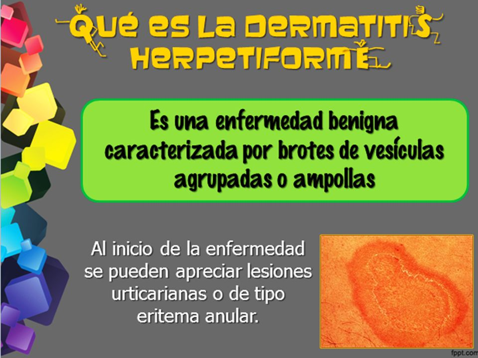 ¿ ué es la dermatiti herpetiform
