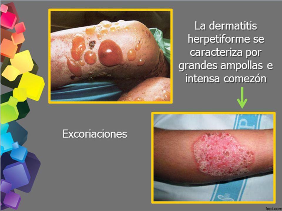 La dermatitis herpetiforme se caracteriza por grandes ampollas e intensa comezón