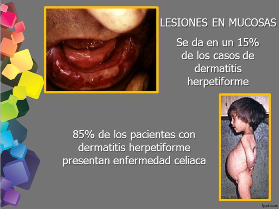 Se da en un 15% de los casos de dermatitis herpetiforme