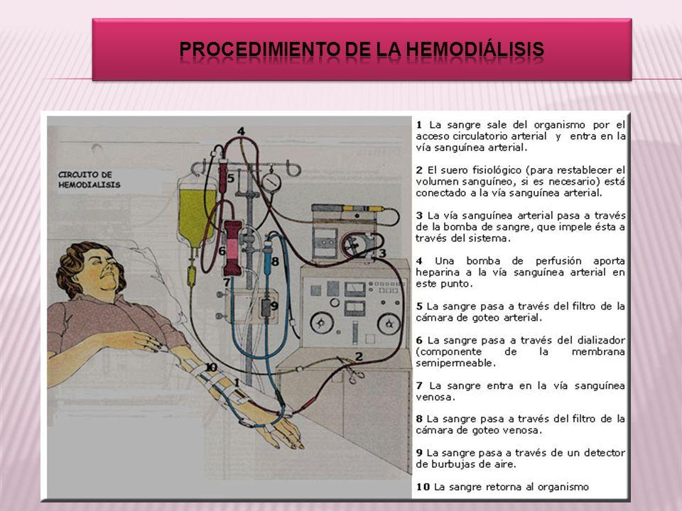 Procedimiento de la hemodiálisis