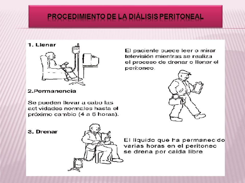 Procedimiento de la diálisis peritoneal