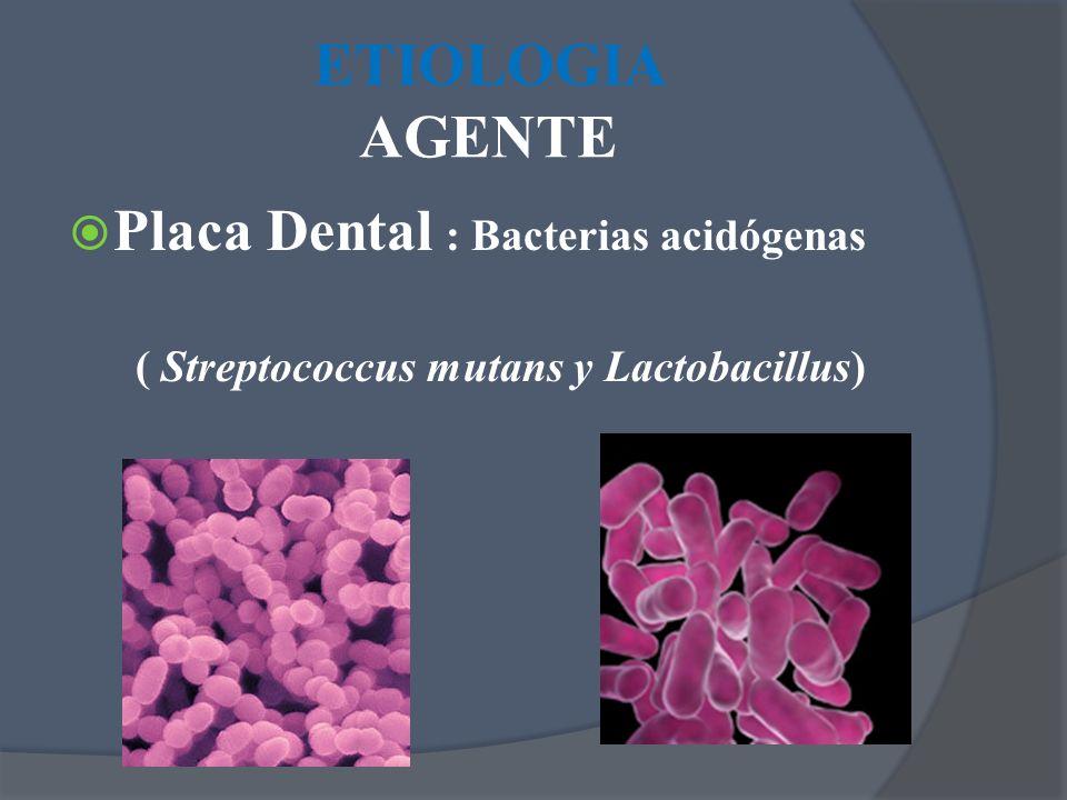 ETIOLOGIA AGENTE Placa Dental : Bacterias acidógenas