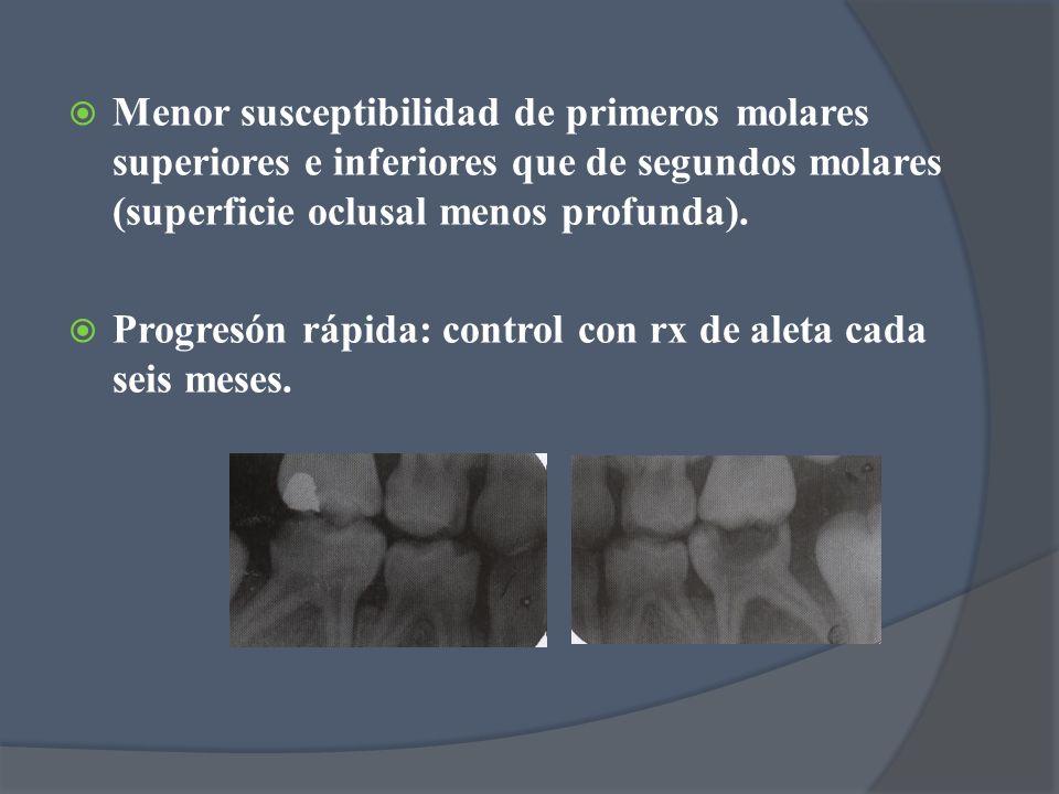 Menor susceptibilidad de primeros molares superiores e inferiores que de segundos molares (superficie oclusal menos profunda).