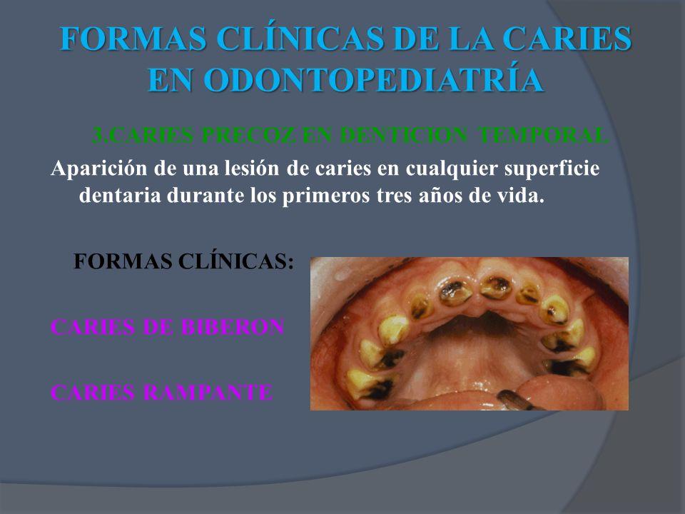 FORMAS CLÍNICAS DE LA CARIES EN ODONTOPEDIATRÍA