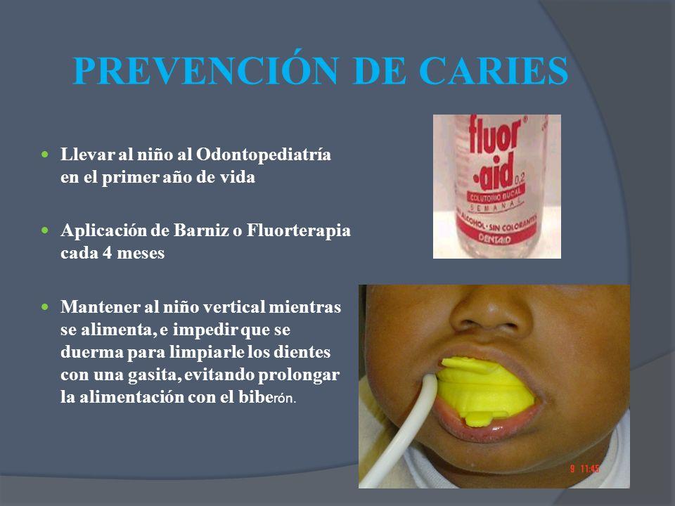 PREVENCIÓN DE CARIES Llevar al niño al Odontopediatría en el primer año de vida. Aplicación de Barniz o Fluorterapia cada 4 meses.