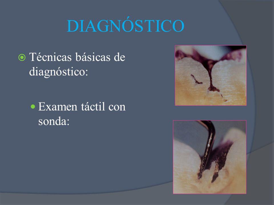 DIAGNÓSTICO Técnicas básicas de diagnóstico: Examen táctil con sonda: