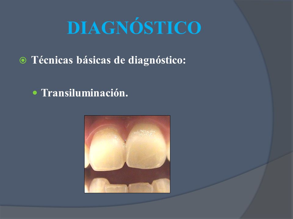 DIAGNÓSTICO Técnicas básicas de diagnóstico: Transiluminación.