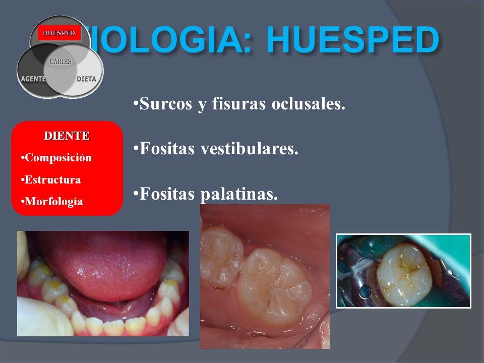 ETIOLOGIA: HUESPED Surcos y fisuras oclusales. Fositas vestibulares.