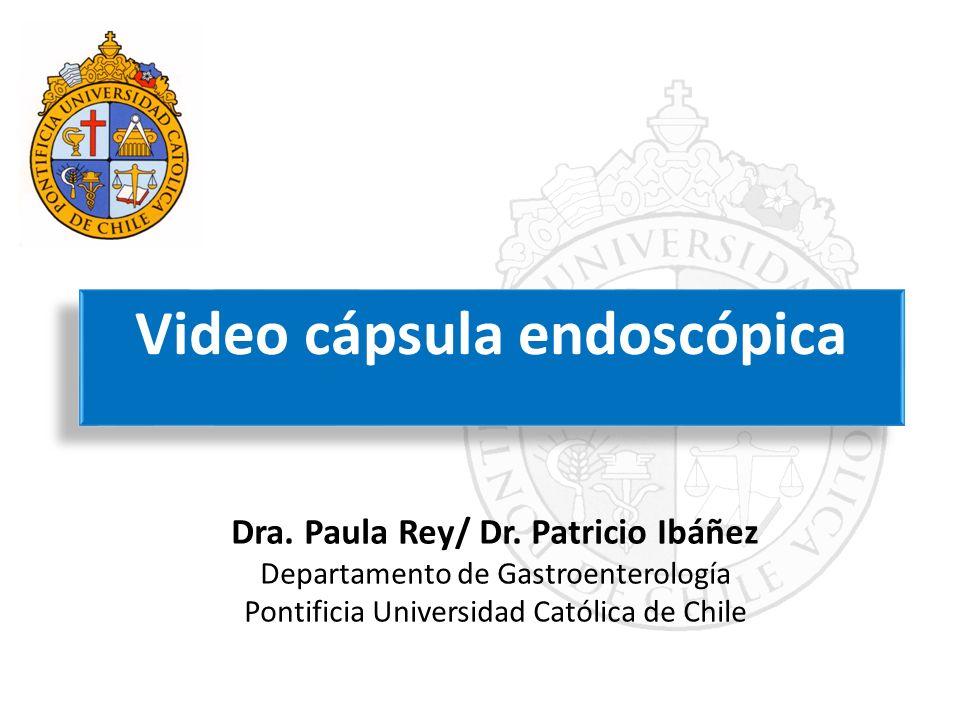 Video cápsula endoscópica Dra. Paula Rey/ Dr. Patricio Ibáñez