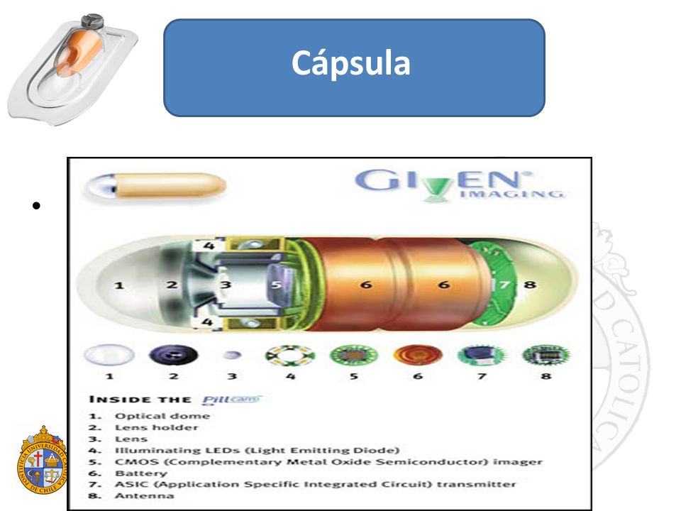 Cápsula Video cápsula endoscópica (VCE): método diagnóstico no invasivo para el estudio del intestino delgado.
