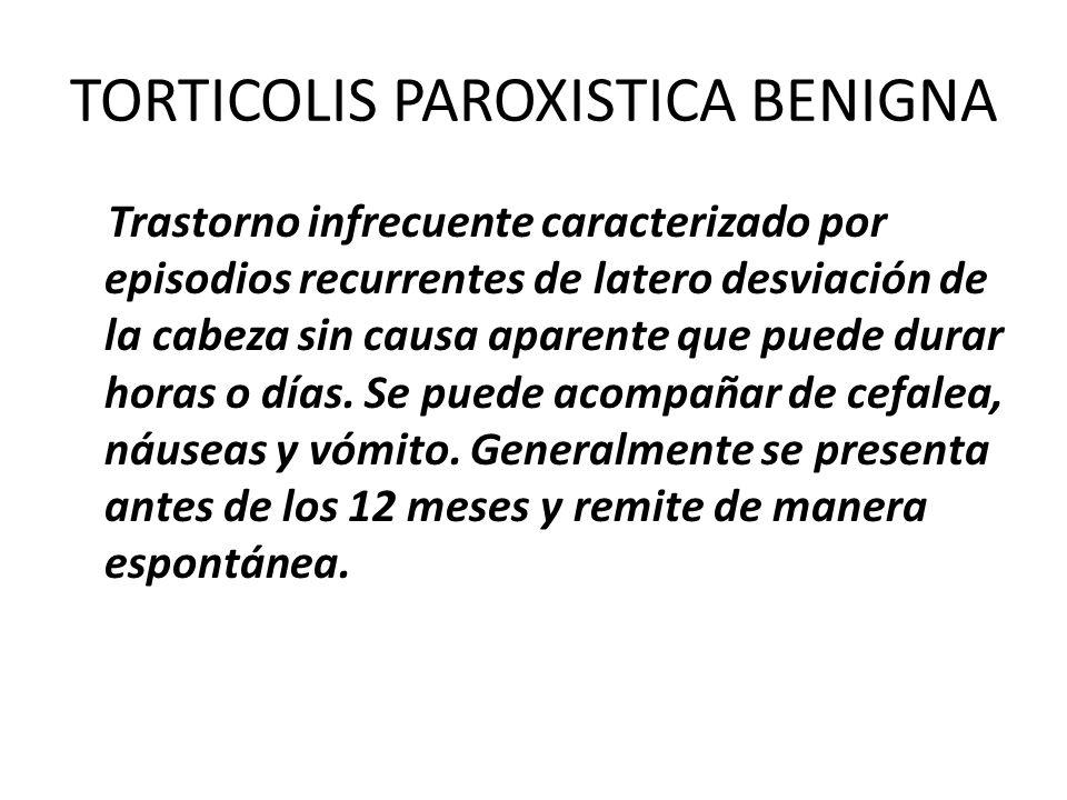 TORTICOLIS PAROXISTICA BENIGNA