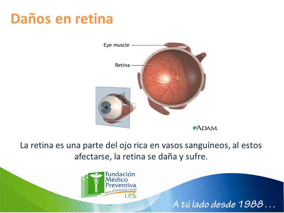 Daños en retina La retina es una parte del ojo rica en vasos sanguíneos, al estos afectarse, la retina se daña y sufre.