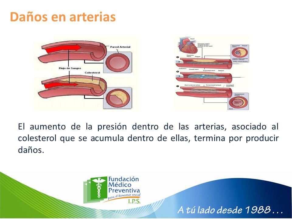 Daños en arterias El aumento de la presión dentro de las arterias, asociado al colesterol que se acumula dentro de ellas, termina por producir daños.