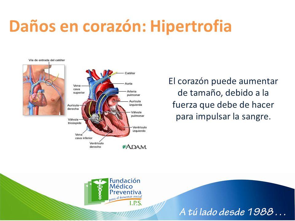 Daños en corazón: Hipertrofia