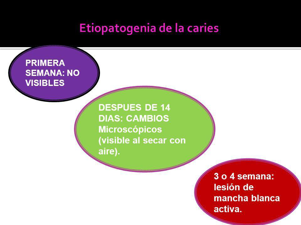 Etiopatogenia de la caries