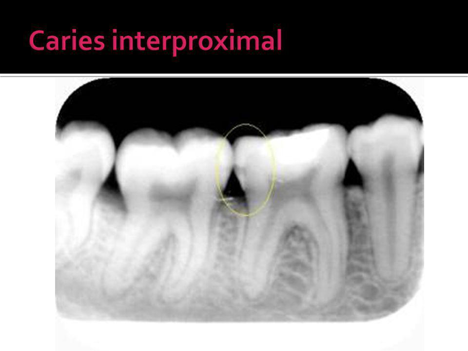 Caries interproximal