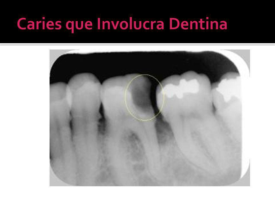 Caries que Involucra Dentina