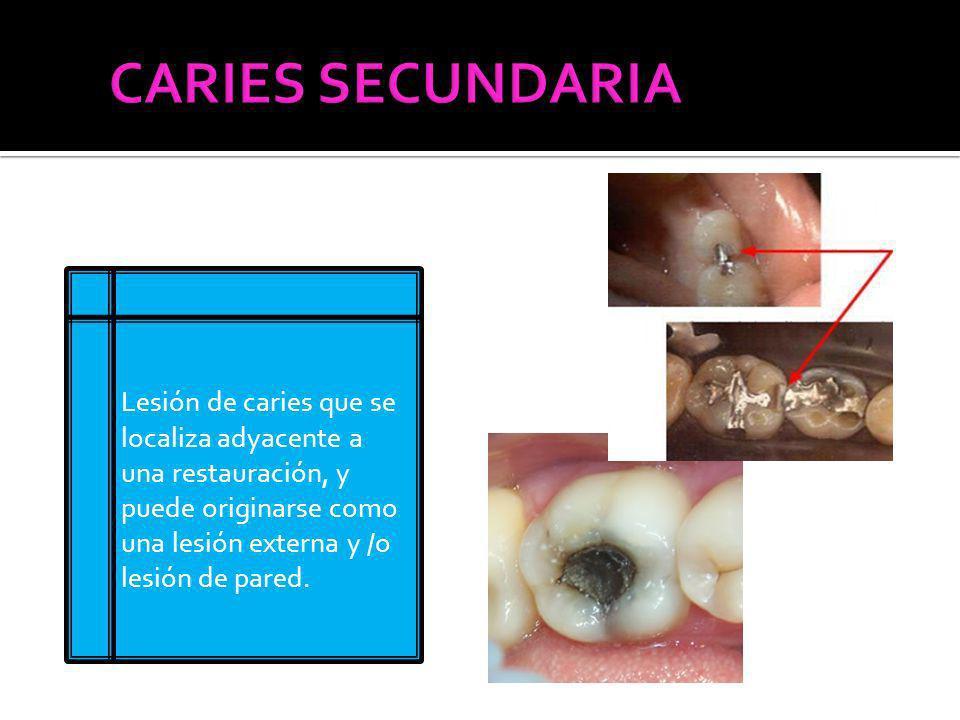 CARIES SECUNDARIA Lesión de caries que se localiza adyacente a una restauración, y puede originarse como una lesión externa y /o lesión de pared.
