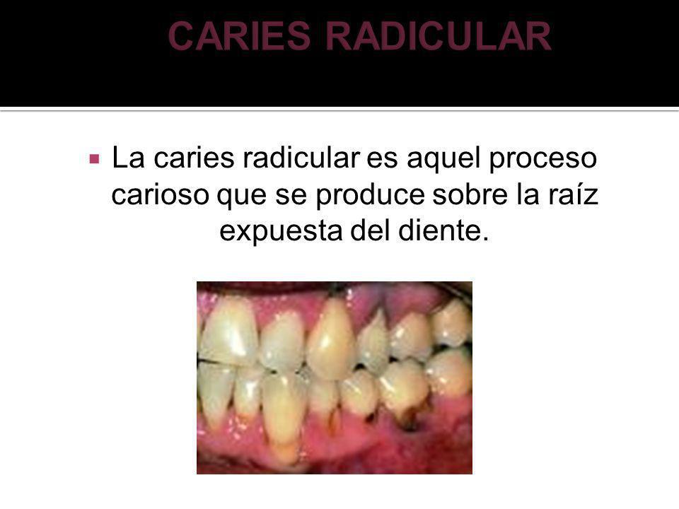 CARIES RADICULAR La caries radicular es aquel proceso carioso que se produce sobre la raíz expuesta del diente.