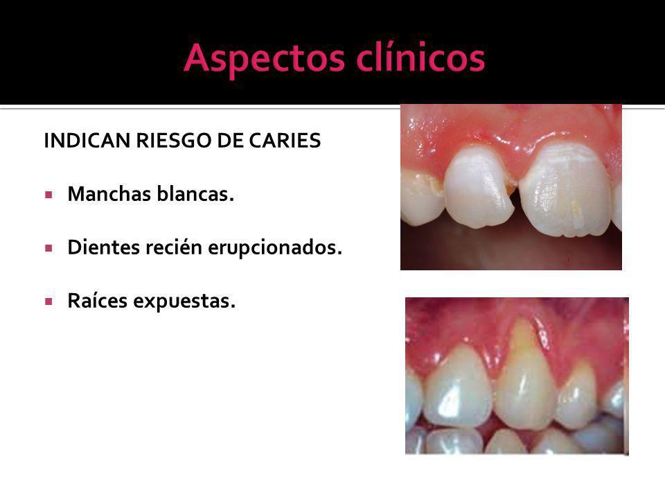 Aspectos clínicos INDICAN RIESGO DE CARIES Manchas blancas.