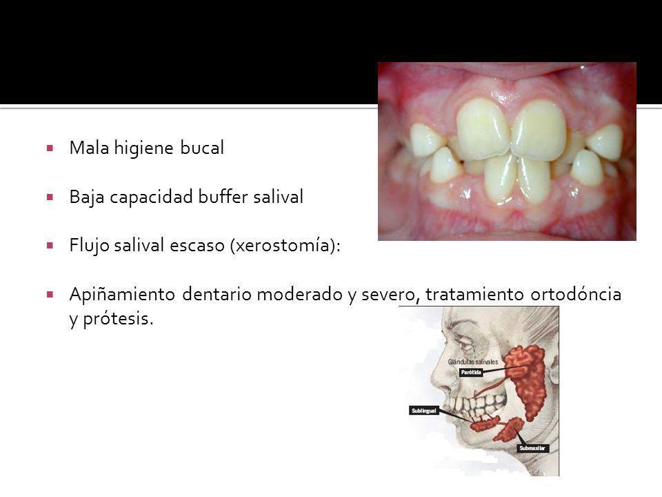 Mala higiene bucal Baja capacidad buffer salival. Flujo salival escaso (xerostomía):