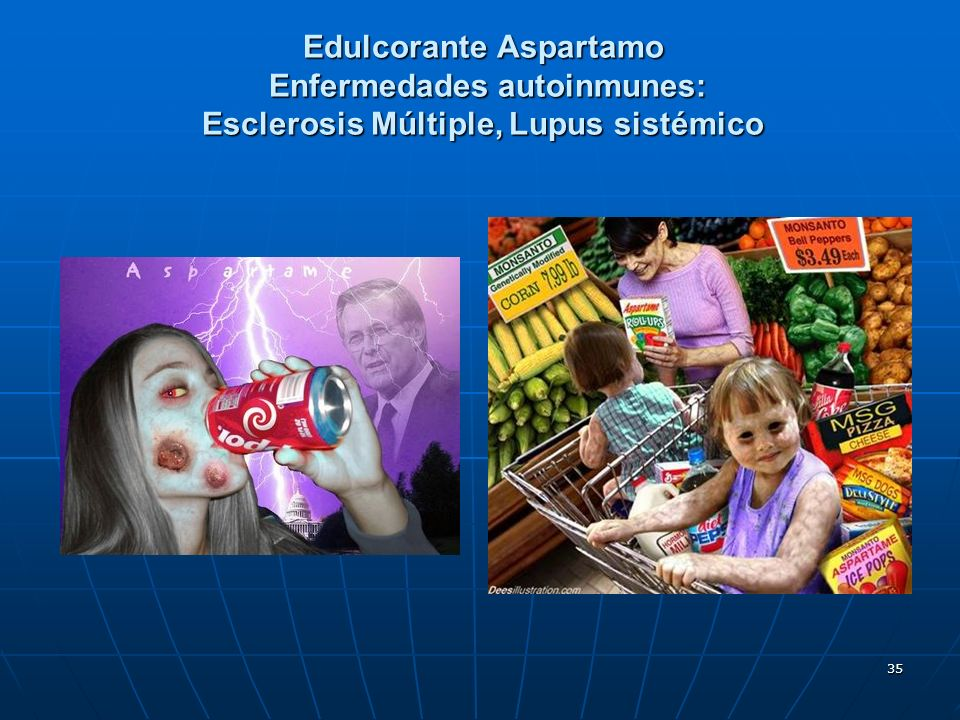 Edulcorante Aspartamo Enfermedades autoinmunes: Esclerosis Múltiple, Lupus sistémico