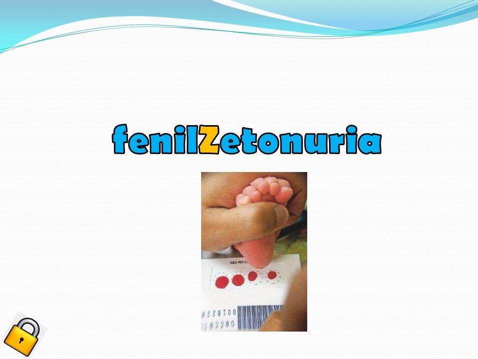 fenilZetonuria