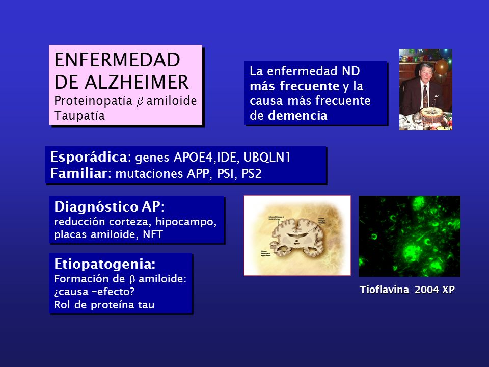 ENFERMEDAD DE ALZHEIMER Esporádica: genes APOE4,IDE, UBQLN1