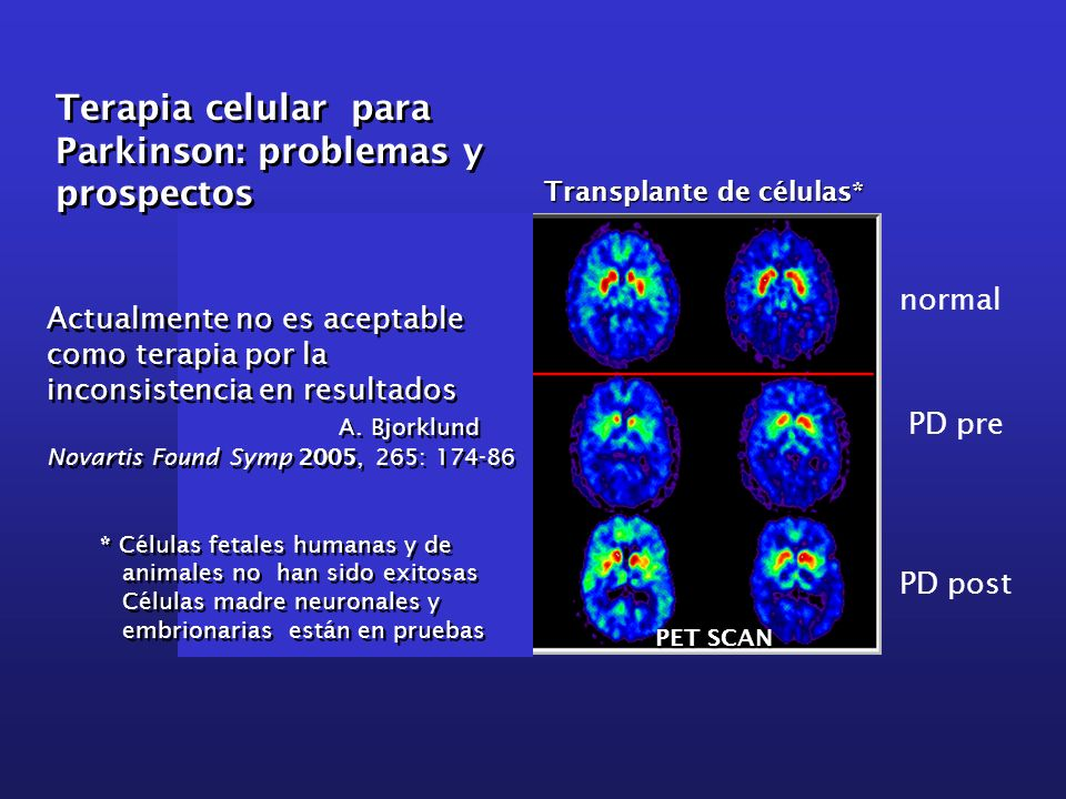 Terapia celular para Parkinson: problemas y prospectos